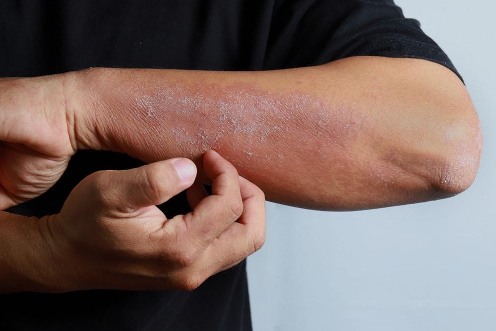 Man scratches ezcema flare-up