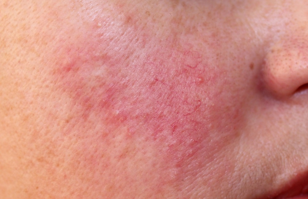 close-up of rosacea on skin