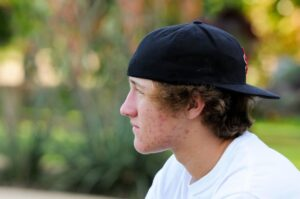Male Teen With Acne And Backwards Hat In Park