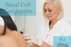 Dermatologist Examining A Patient For Basal Cell Carcinoma