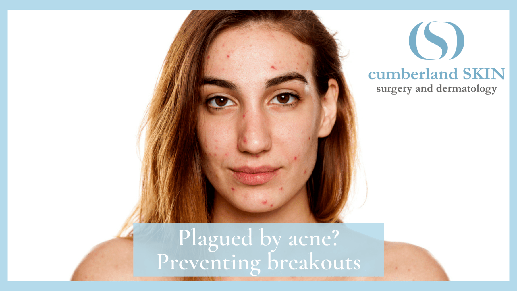 acne cured by Cumberland Skin