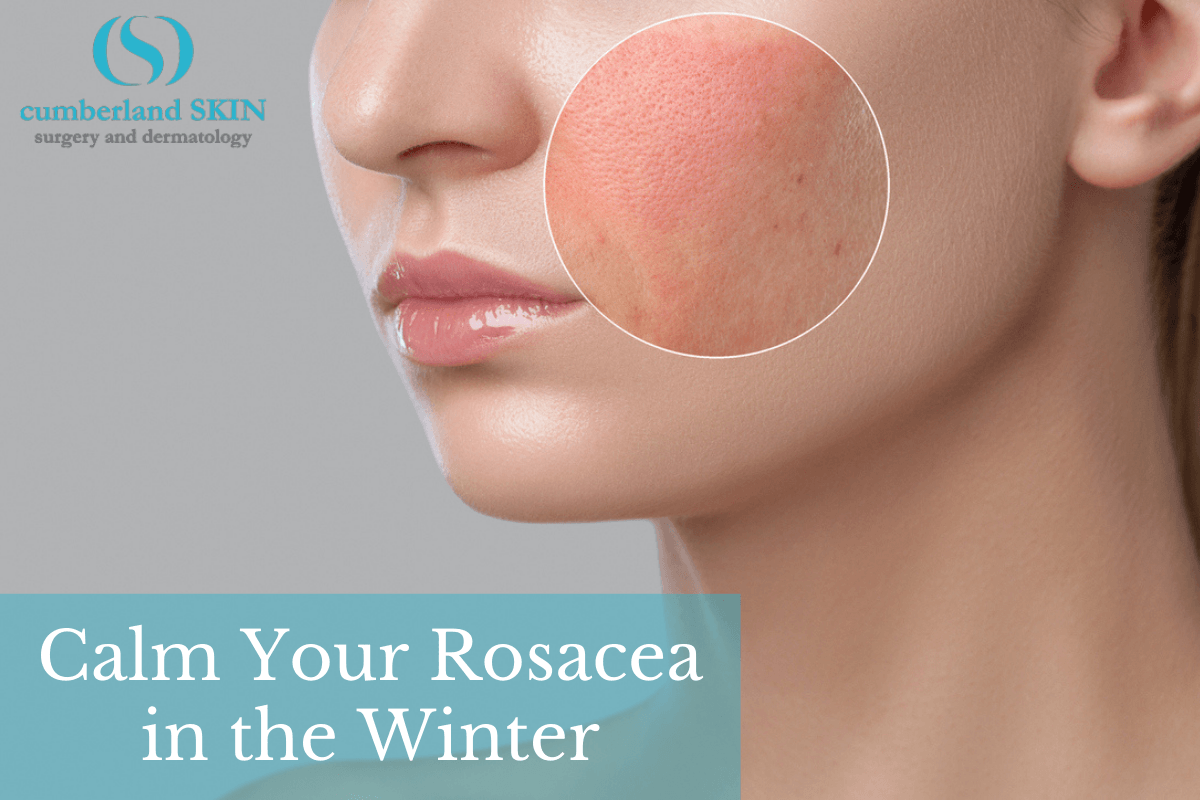 a woman with a rosacea flare-up who should follow our rosacea winter tips