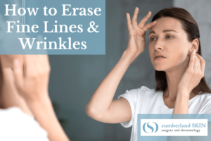 Woman With Fine Lines And Wrinkles Looking For The Best Anti-aging Treatment At Cumberland Skin