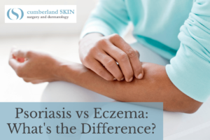 Woman With Psoriasis Or Eczema Itching Her Arm. Treatment For Psoriasis And Eczema At Cumberland Skin Would Help Her Find Relief!