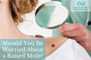 Woman With A Raised Mole On Her Skin, Getting It Checked Out By A Professional, Board-certified Dermatologist At Cumberland Skin