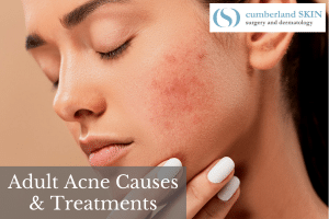 What Are The Causes Of Adult Acne And What Are The Best Adult Acne Treatments? Find Out From Cumberland Skin.