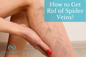 How To Get Rid Of Spider Veins? Find Out From Cumberland Skin And The Best Spider Veins Treatments.